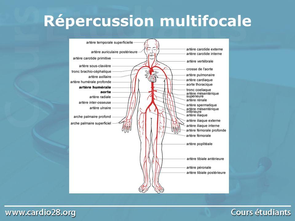 Répercussion multifocale