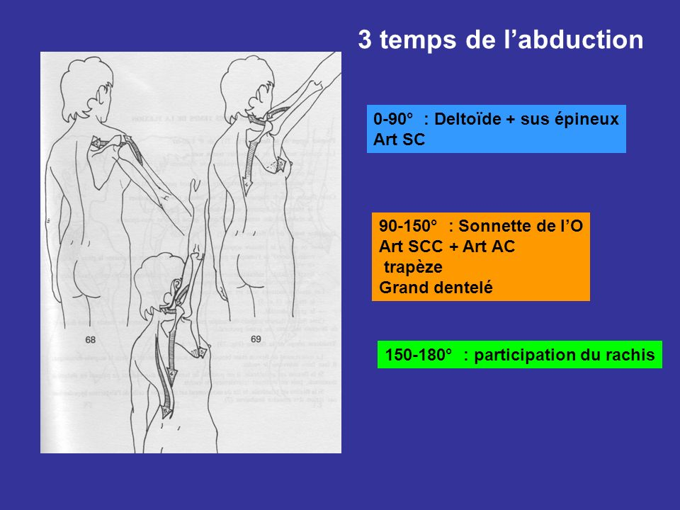 3 temps de l'abduction 0-90° : Deltoïde + sus épineux Art SC