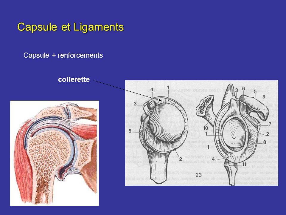 Capsule et Ligaments Capsule + renforcements collerette