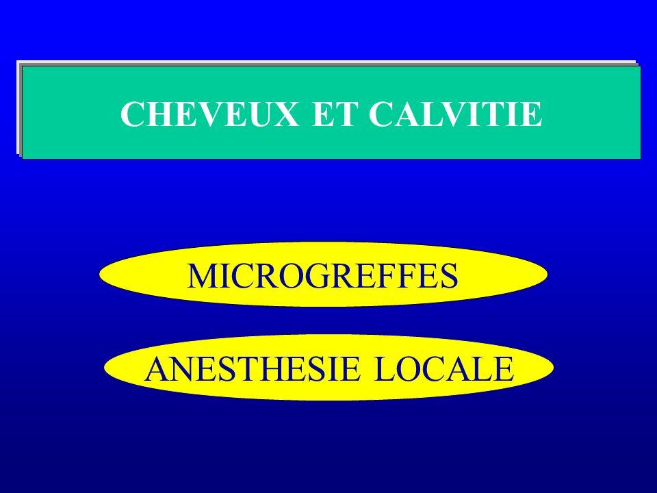 CHEVEUX ET CALVITIE MICROGREFFES ANESTHESIE LOCALE