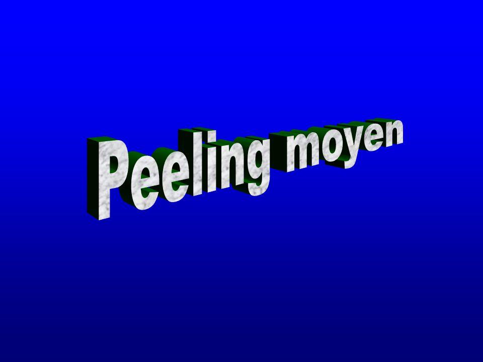 Peeling moyen