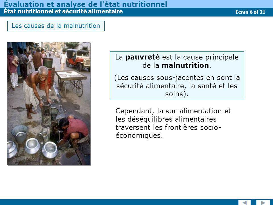 La pauvreté est la cause principale de la malnutrition.