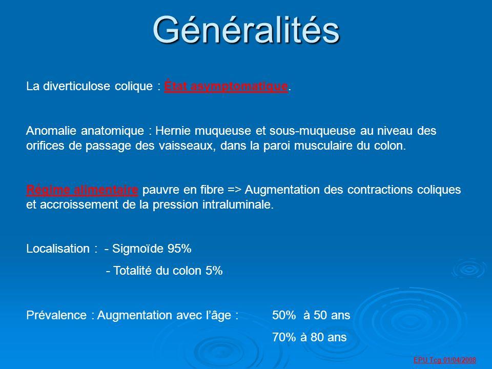 Généralités La diverticulose colique : État asymptomatique.
