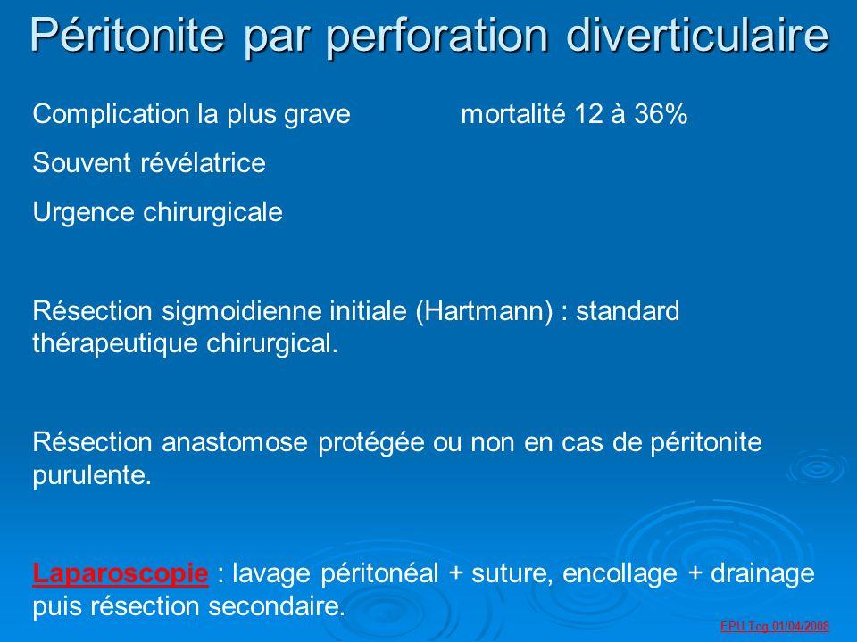 Péritonite par perforation diverticulaire