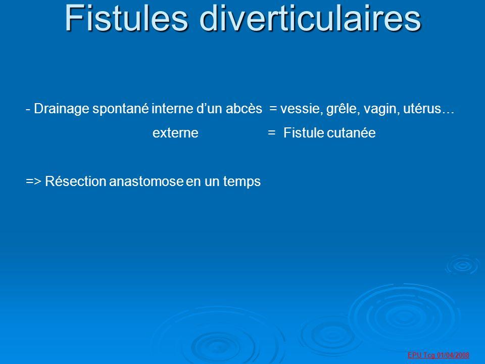 Fistules diverticulaires