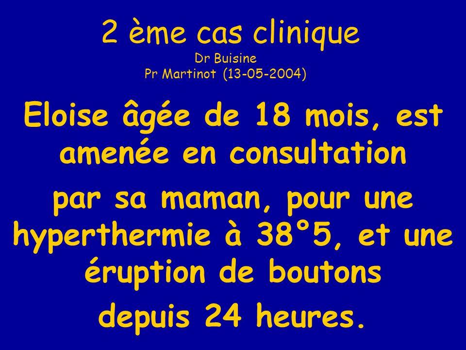 2 ème cas clinique Dr Buisine Pr Martinot (13-05-2004)