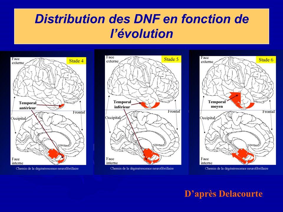 Distribution des DNF en fonction de l'évolution