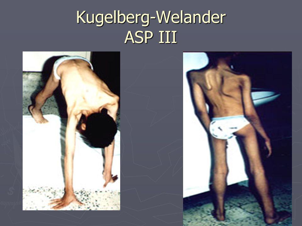 Kugelberg-Welander ASP III