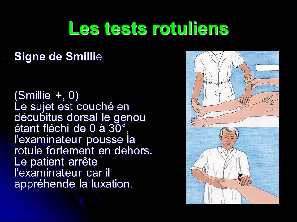 Les tests rotuliens Signe de Smillie