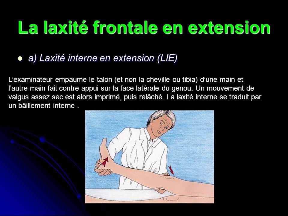 La laxité frontale en extension