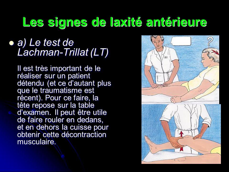 Les signes de laxité antérieure
