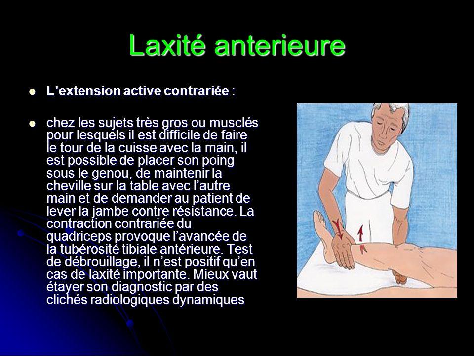 Laxité anterieure L'extension active contrariée :