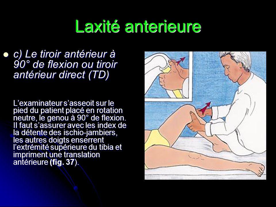 Laxité anterieure c) Le tiroir antérieur à 90° de flexion ou tiroir antérieur direct (TD)
