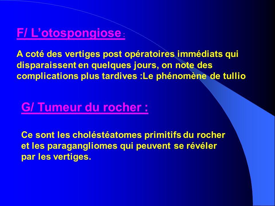 F/ L'otospongiose : G/ Tumeur du rocher :