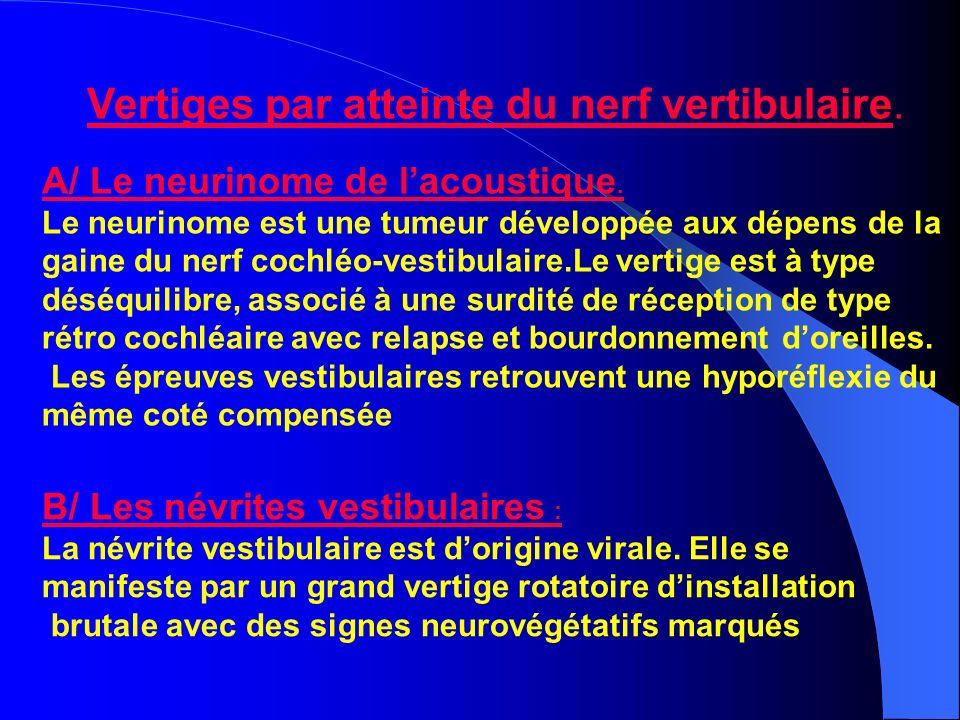 Vertiges par atteinte du nerf vertibulaire.