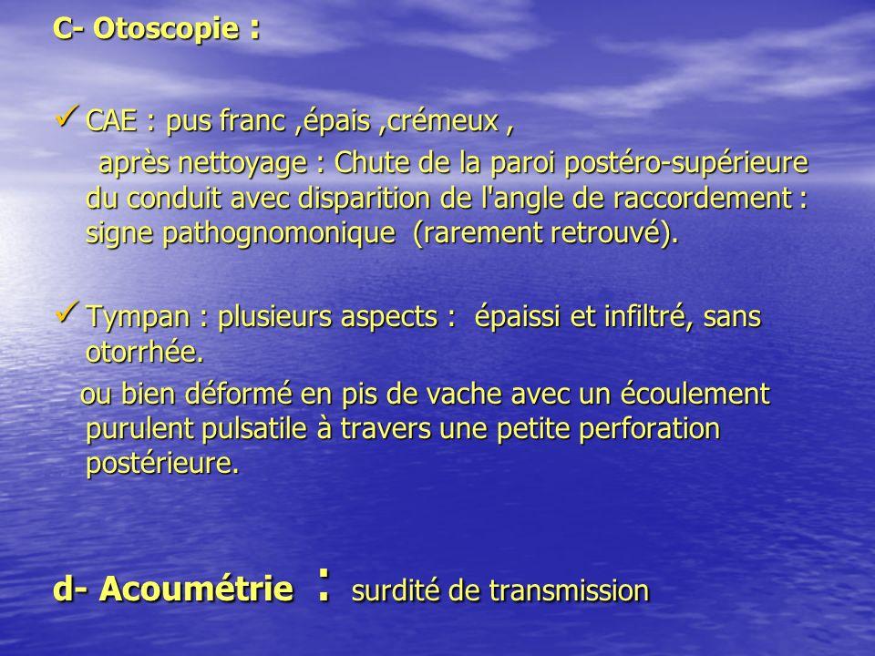 d- Acoumétrie : surdité de transmission