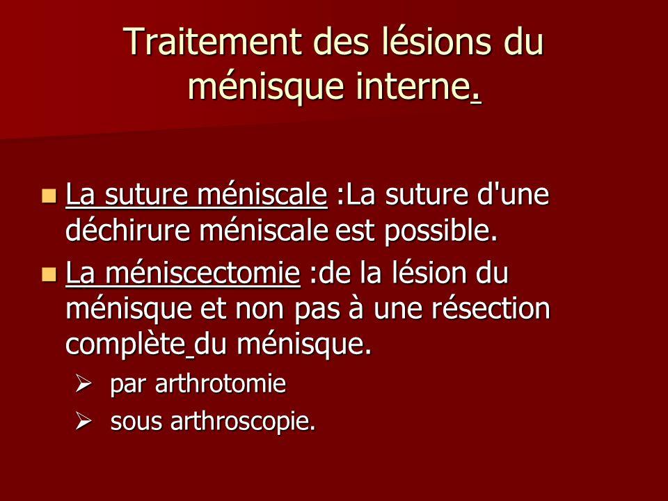 Traitement des lésions du ménisque interne.