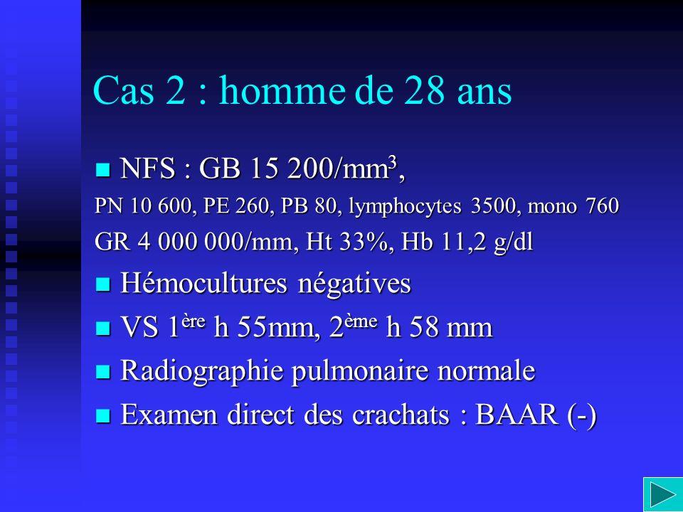 Cas 2 : homme de 28 ans NFS : GB 15 200/mm3, Hémocultures négatives