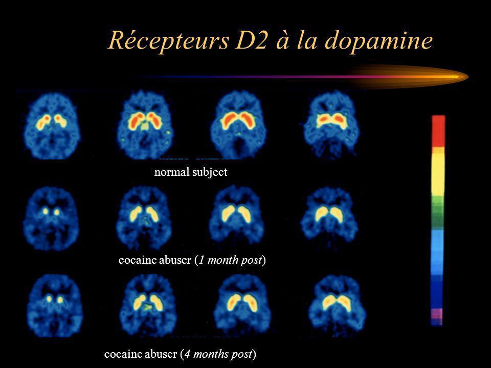 Récepteurs D2 à la dopamine