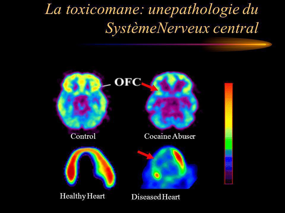 La toxicomane: unepathologie du SystèmeNerveux central