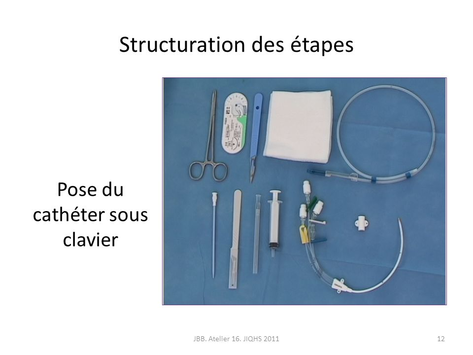 Structuration des étapes