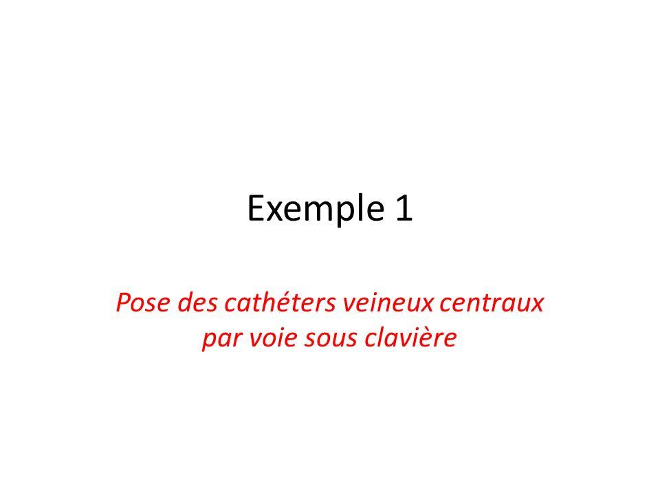 Pose des cathéters veineux centraux par voie sous clavière