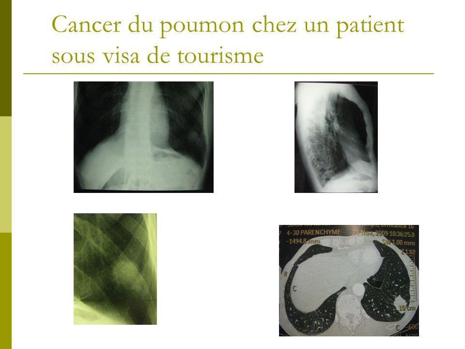Cancer du poumon chez un patient sous visa de tourisme