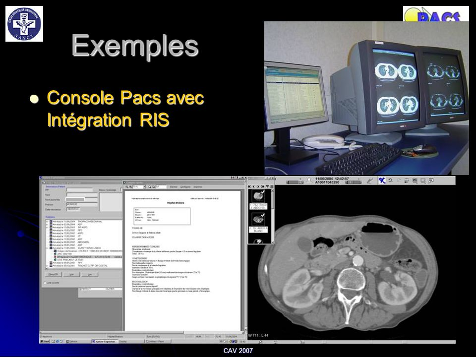 Exemples Console Pacs avec Intégration RIS CAV 2007