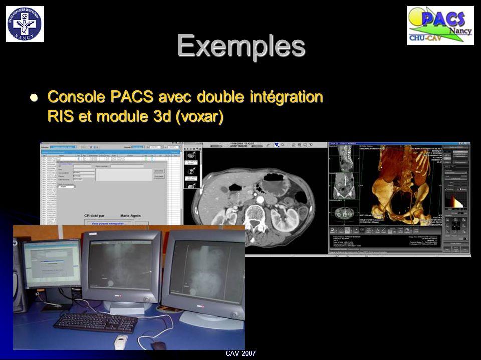 Exemples Console PACS avec double intégration RIS et module 3d (voxar)