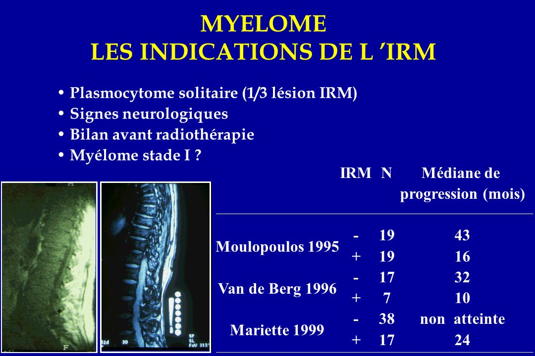 MYELOME LES INDICATIONS DE L 'IRM