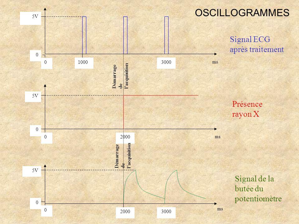 OSCILLOGRAMMES Signal ECG après traitement Présence rayon X