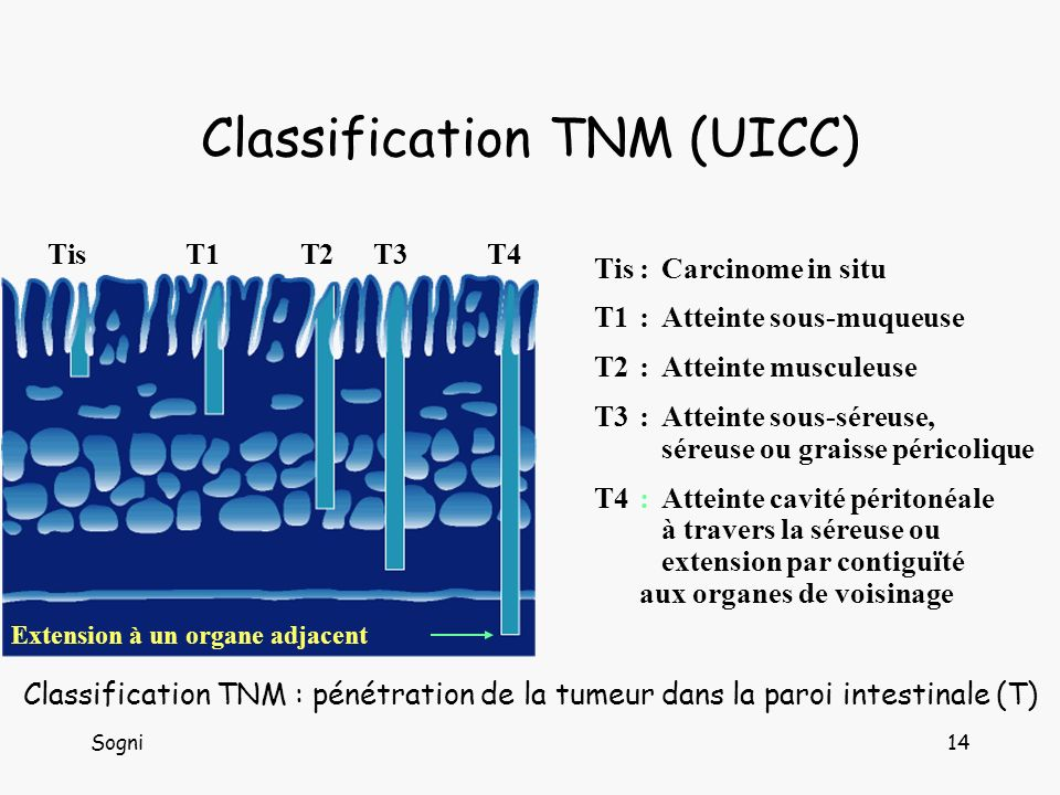 Classification TNM (UICC)