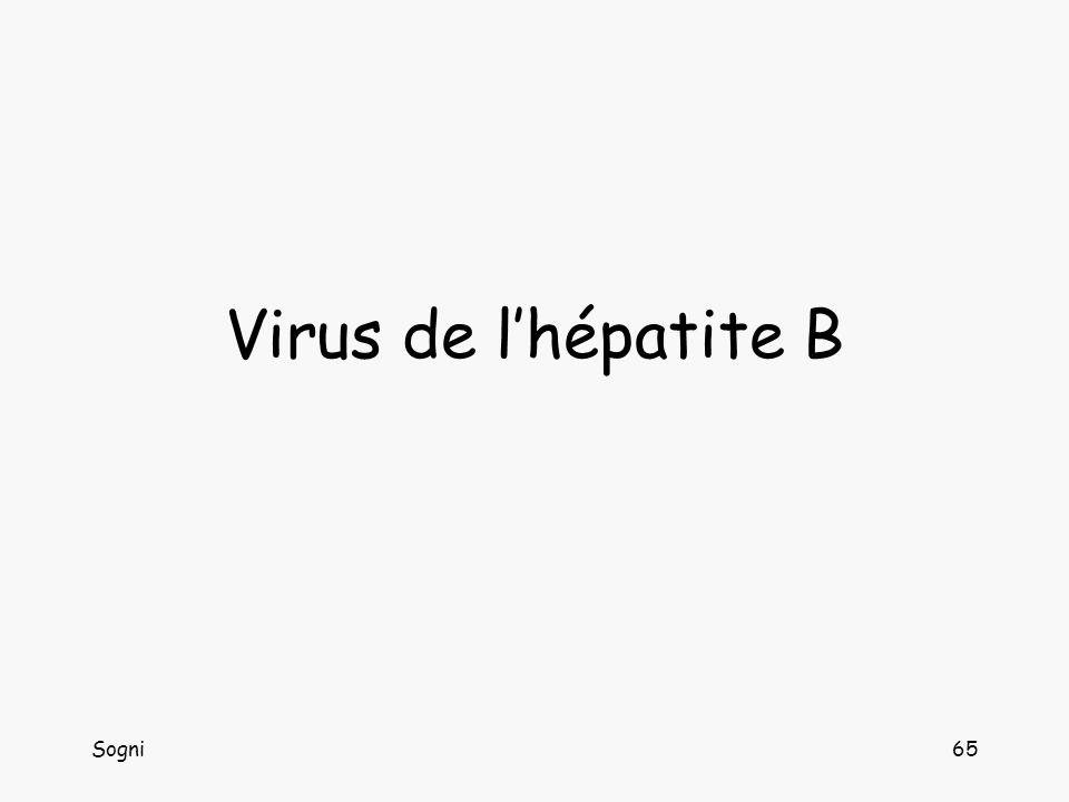Virus de l'hépatite B Sogni