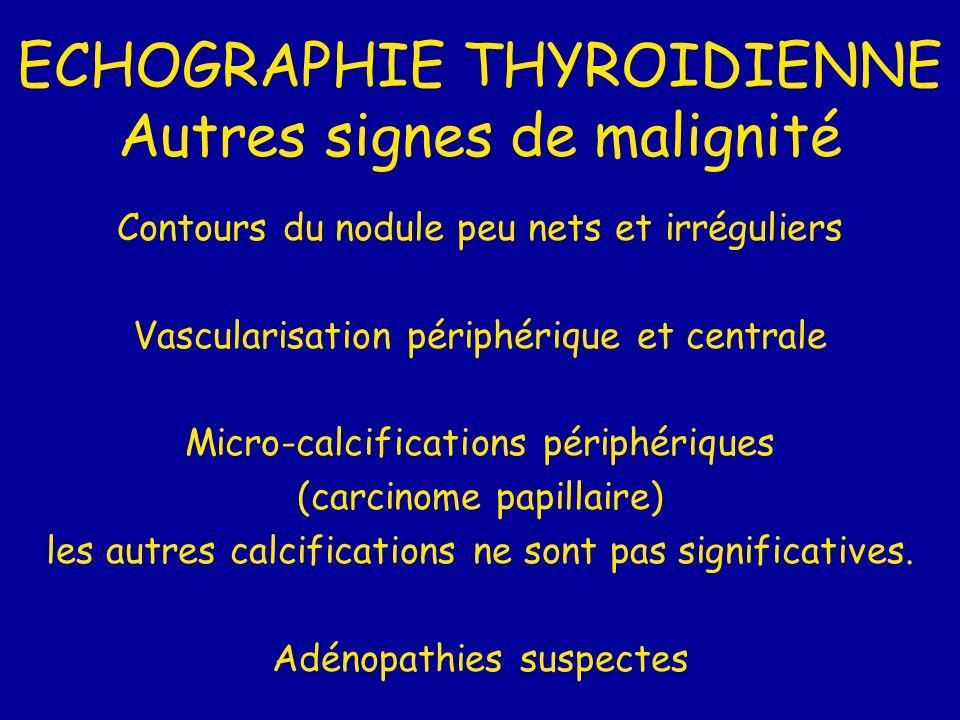 ECHOGRAPHIE THYROIDIENNE Autres signes de malignité