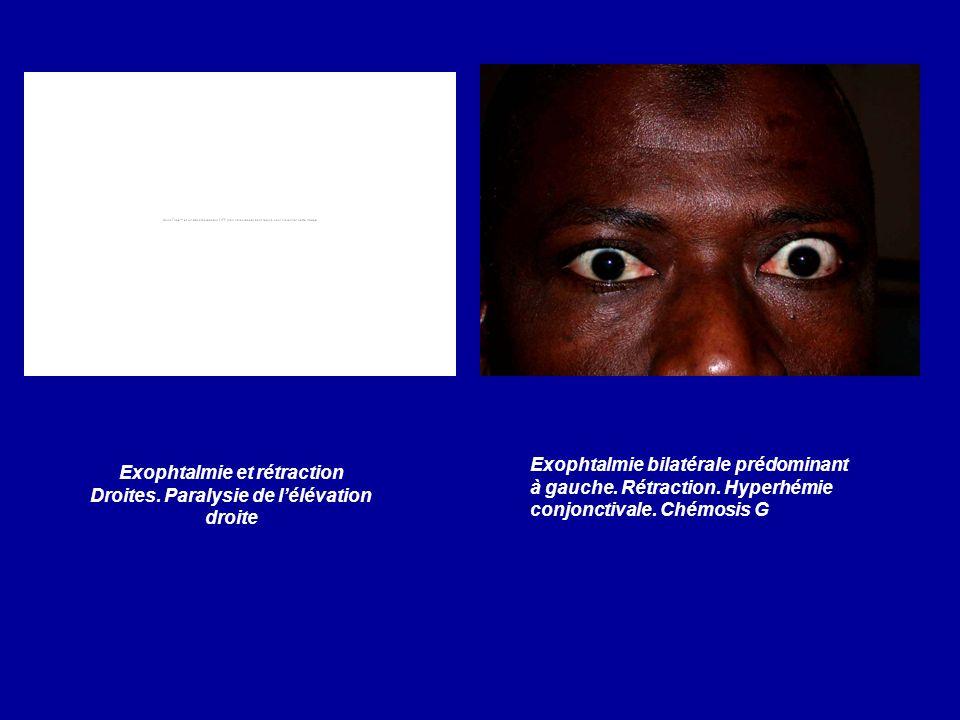 Exophtalmie et rétraction Droites. Paralysie de l'élévation