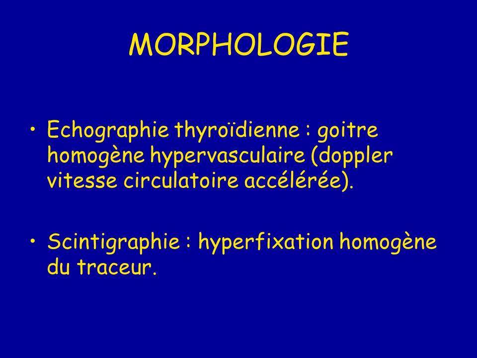 MORPHOLOGIE Echographie thyroïdienne : goitre homogène hypervasculaire (doppler vitesse circulatoire accélérée).