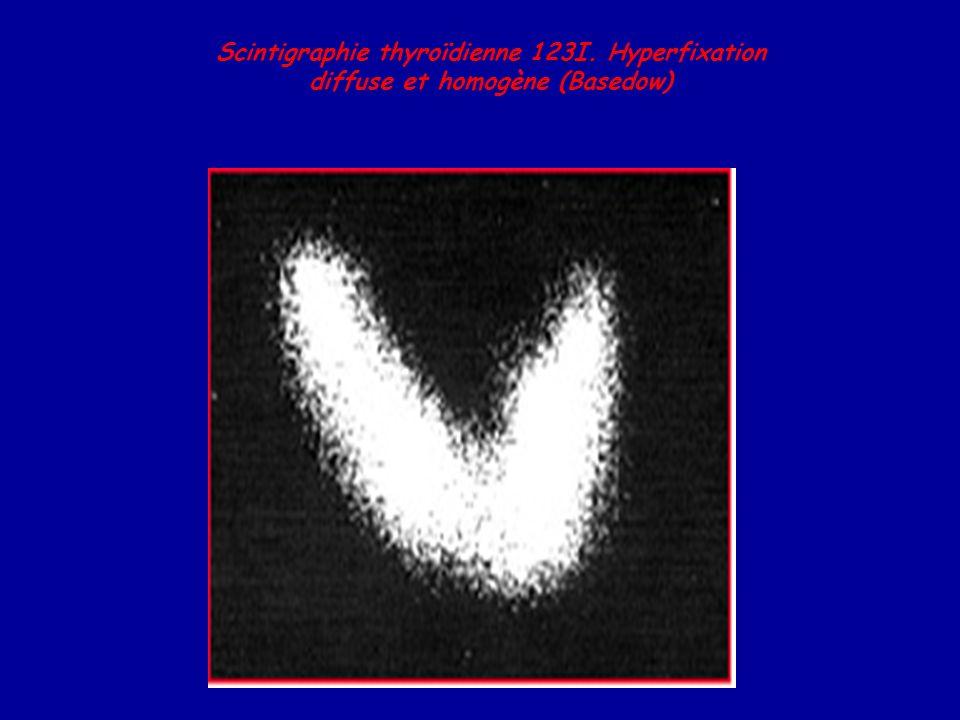 Scintigraphie thyroïdienne 123I. Hyperfixation