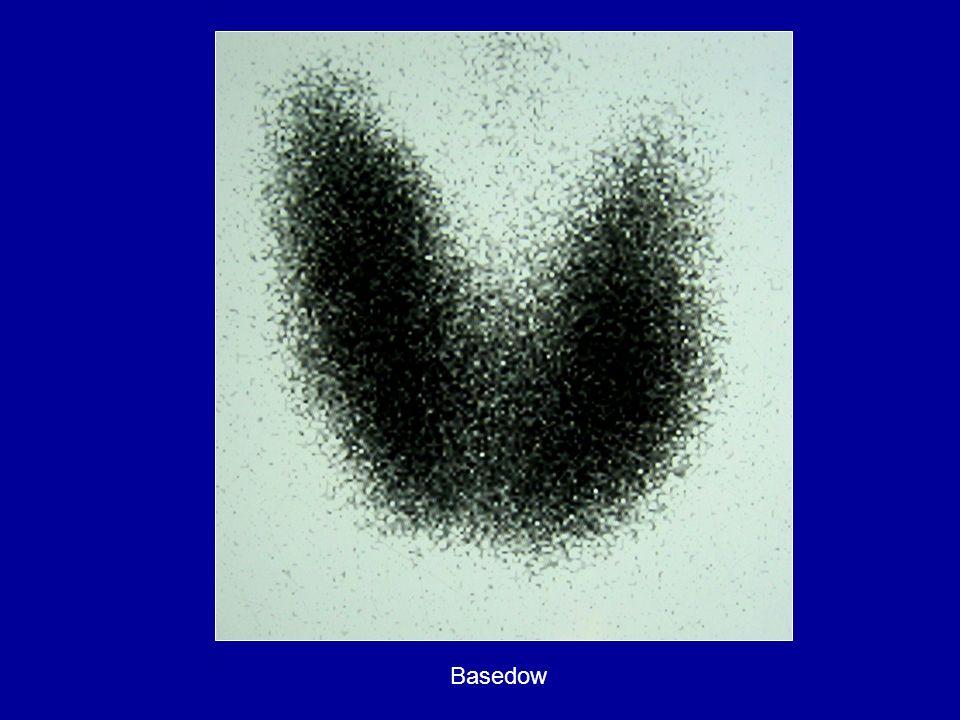 Basedow