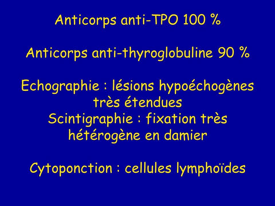 Anticorps anti-TPO 100 % Anticorps anti-thyroglobuline 90 % Echographie : lésions hypoéchogènes très étendues Scintigraphie : fixation très hétérogène en damier Cytoponction : cellules lymphoïdes