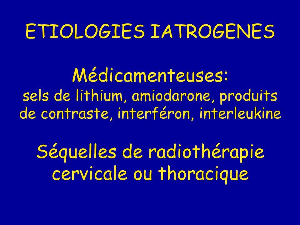 ETIOLOGIES IATROGENES Médicamenteuses: sels de lithium, amiodarone, produits de contraste, interféron, interleukine Séquelles de radiothérapie cervicale ou thoracique