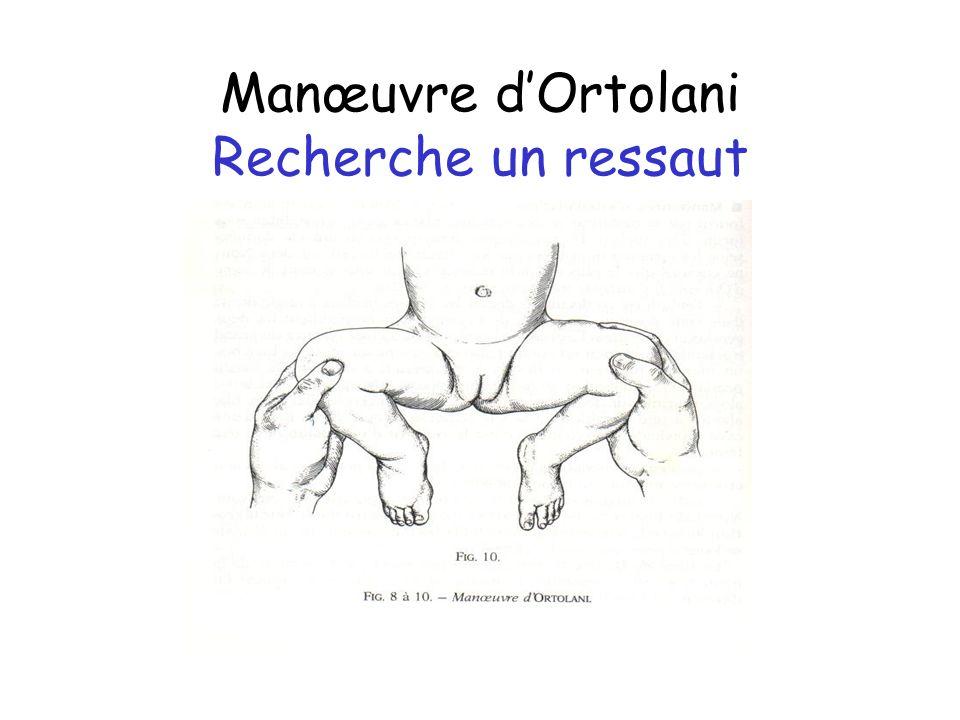 Manœuvre d'Ortolani Recherche un ressaut