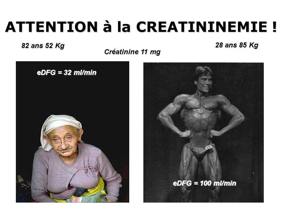ATTENTION à la CREATININEMIE !