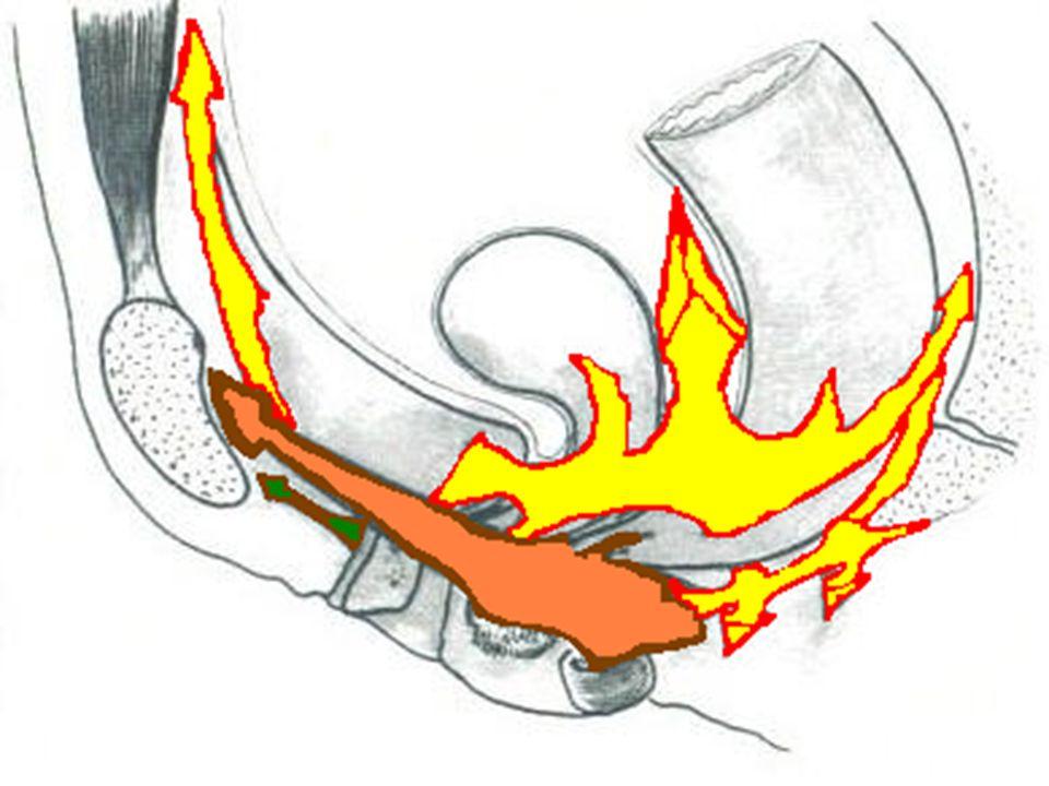 Les viscères pelviens sont maintenus en place par un double système élastique: l'un, contractile et à prédominance antérieure représenté par les élévateurs,l'autre, à prédominance postérieure, non contractile car ligamentaire: l'aileron viscéral commun et ses expansions. Ces deux systèmes doivent être suffisamment souples pour s'adapter aux modifications anatomiques provoquées par la grossesse et l'accouchement, et suffisamment résistants pour maintenir dans cette situation une statique viscérale efficace. Ils doivent, enfin, garder« une mémoire» pour retrouver après l'accouchement une qualité adaptée à leurs fonctions.