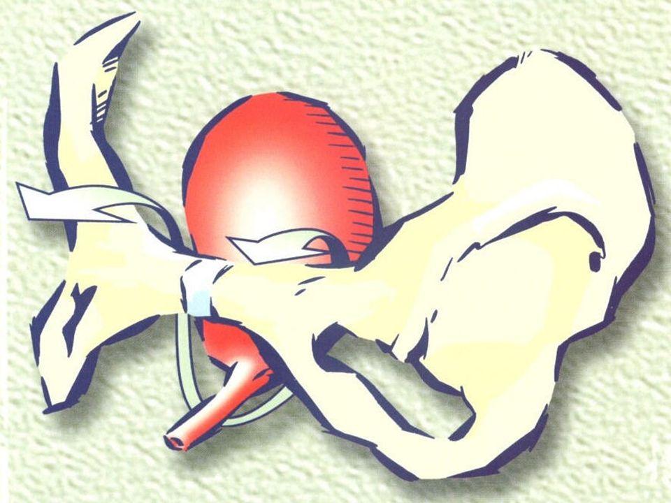 Le TVT : En disposant sans tension un soutient sous l'urètre
