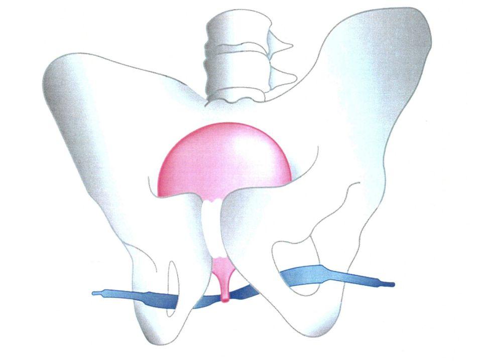Autre technique : en passant la prothèse à travers les trous obturateurs.( on ne risque pas ainsi de perforer la vessie lors de la mise en place).