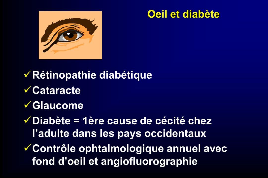 Oeil et diabète Rétinopathie diabétique. Cataracte. Glaucome. Diabète = 1ère cause de cécité chez l'adulte dans les pays occidentaux.