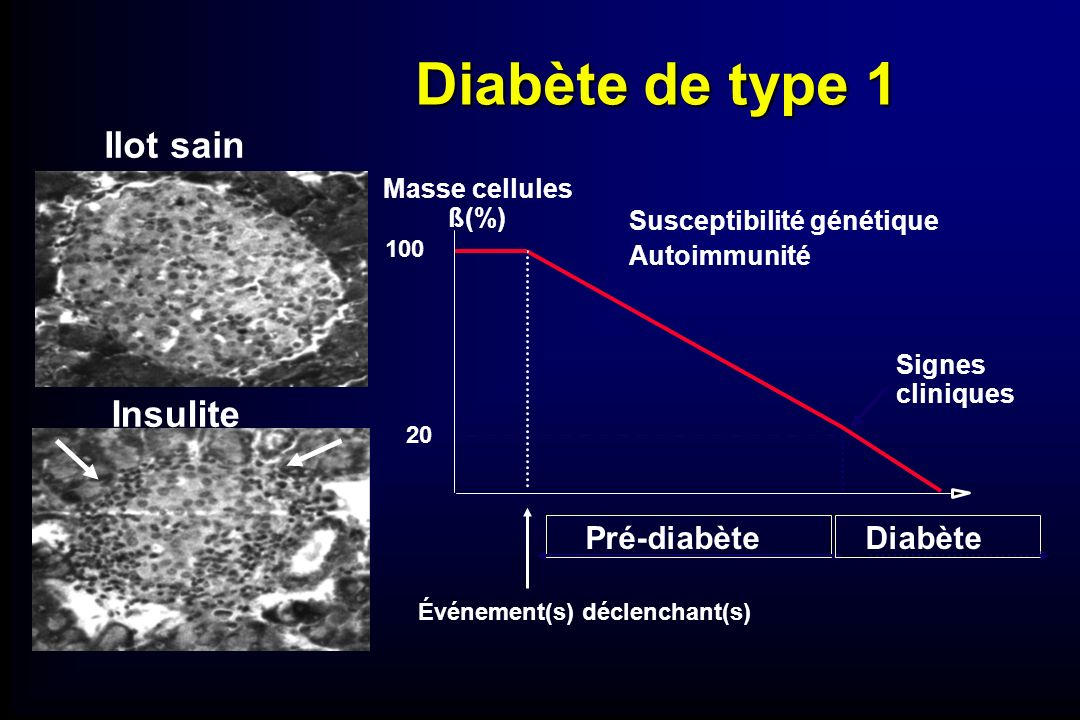 Diabète de type 1 Ilot sain Insulite Pré-diabète Diabète