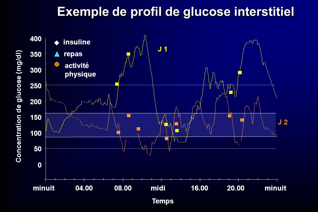 Exemple de profil de glucose interstitiel