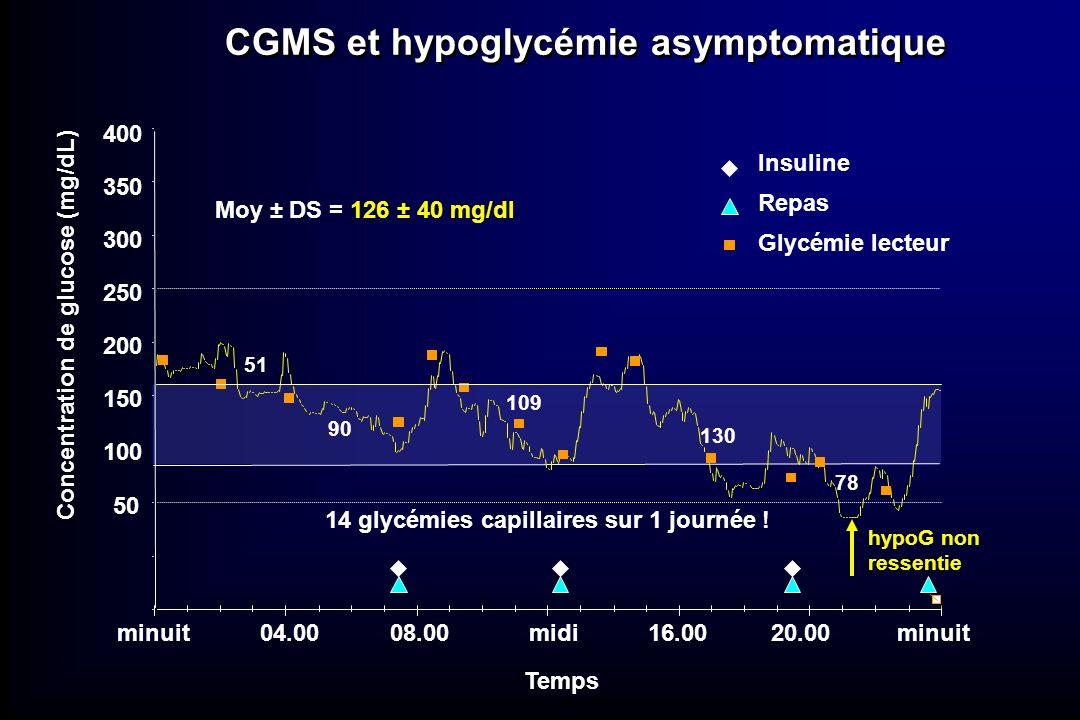 CGMS et hypoglycémie asymptomatique