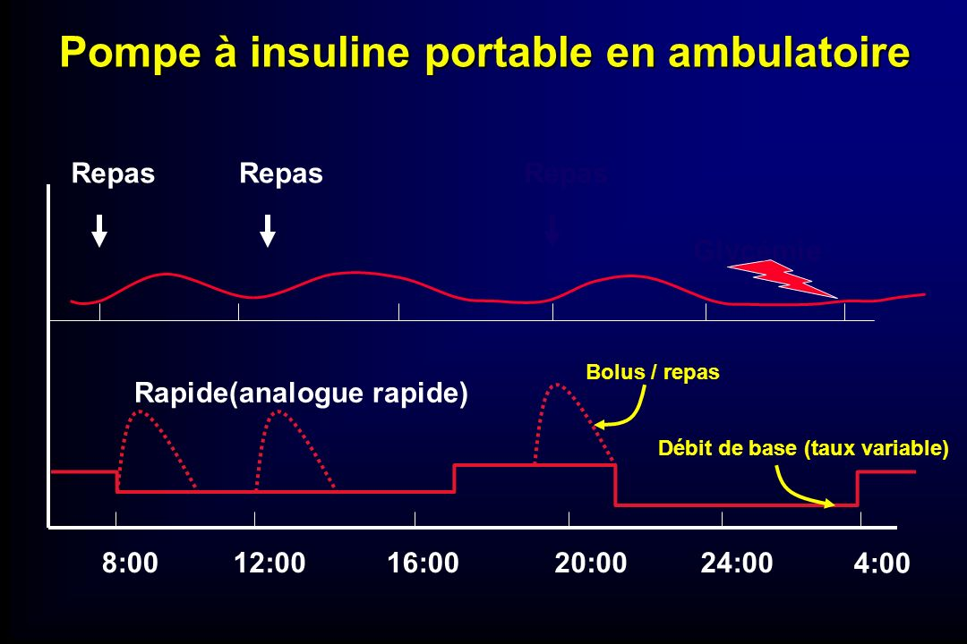 Pompe à insuline portable en ambulatoire